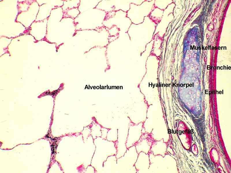 Stauungslunge (mit Herzfehlerzellen), Anthrakose