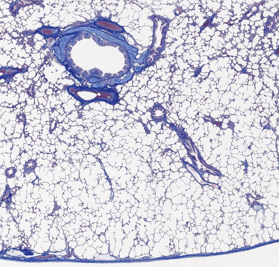 HISTOLOGIE: Lunge, überblick in AZAN färbung und Elastica färbung