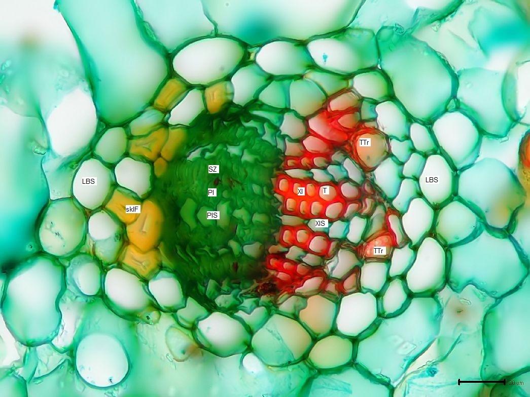 Botanik: Und führe mich nicht in Versuchung - Wollemia nobilis *