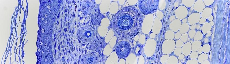 HISTOLOGIE: Rückenmark und Spinalganglion im Kehlkopf der Maus
